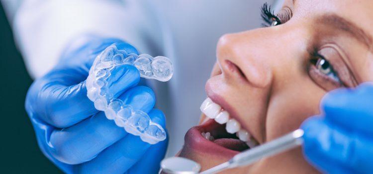 כל סוגי הלבנות השיניים